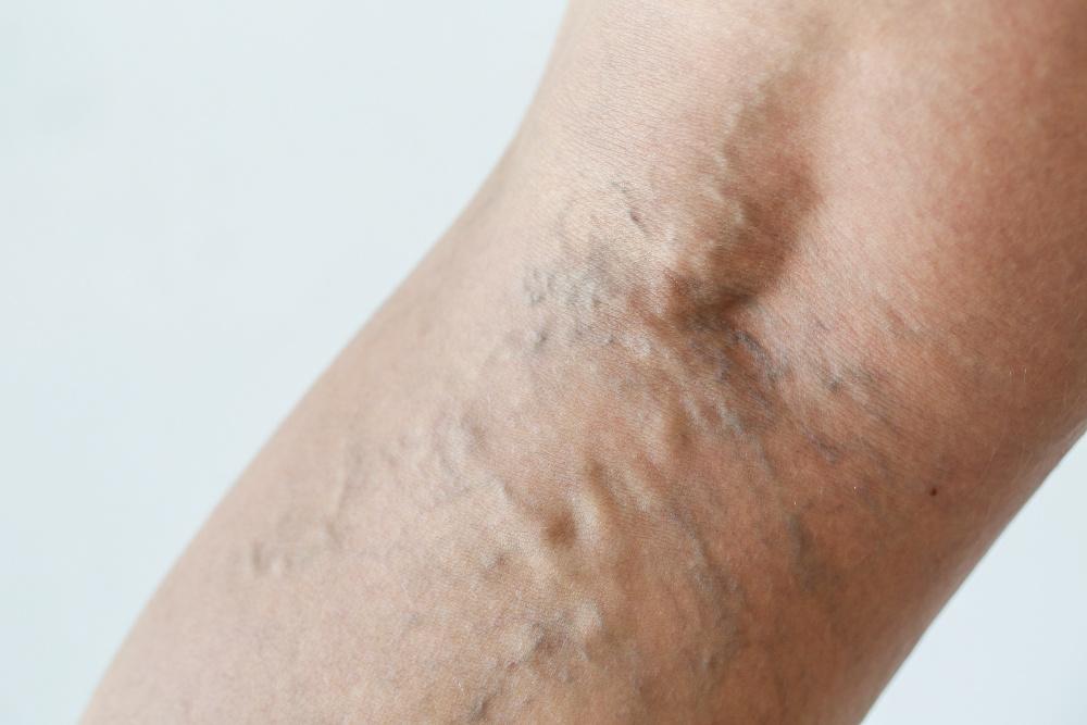La varicosité le traitement à bolgarii